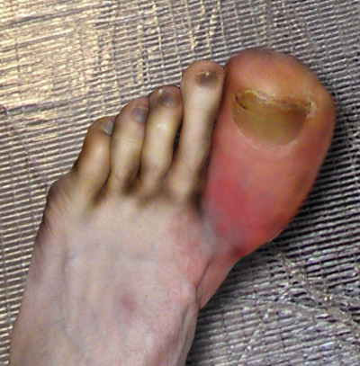 best remedies for gout pain can drinking water cure gout what is the cause of high uric acid level in blood